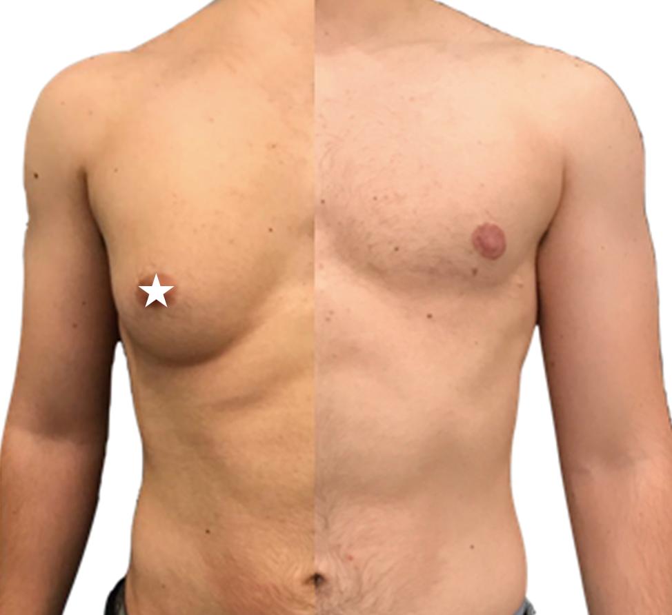 Intervento di ricostruzione del torace, tramite mastectomia, eseguito dalla dottoressa Giulia Lo Russo.