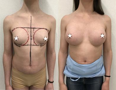 Mastoplastica additiva eseguita su paziente transgender Mtf dalla dottoressa Giulia Lo Russo.