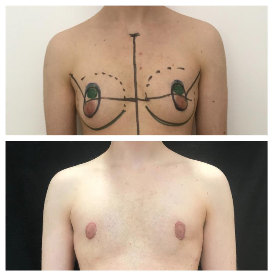 Mastectomia eseguita dalla dott.ssa Giulia Lo Russo con tecnica periareolare.
